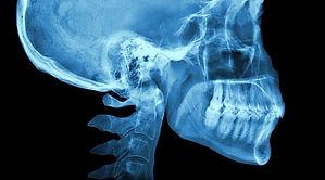 Panoramica Lateral de Cráneo