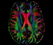 Brain Color Map