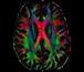 Brain Color Map