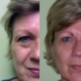 Before-and-after-photo-500x500.png