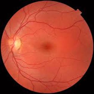 retina.jpg