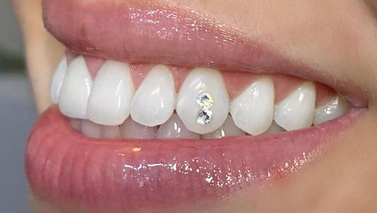 teeth bling.png