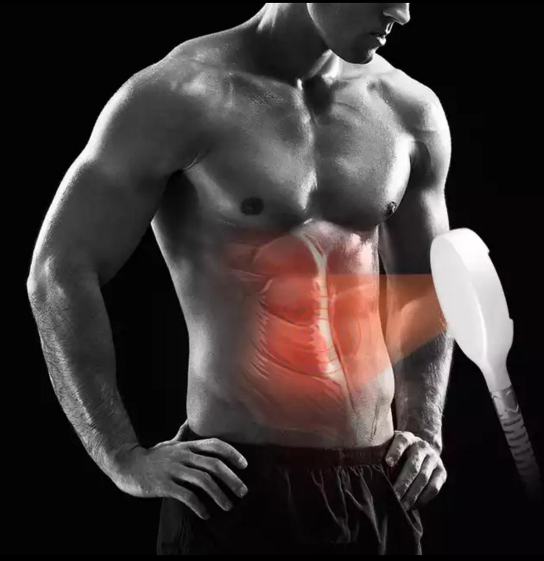 emshape - emshape lifting sans chirurgie