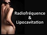 Lipocavitation 1.jpg