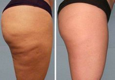 Fini la cellulite lipocavitation