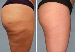 Fini la cellulite lipocavitation