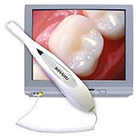 Intra oral camera to view patients teeth and explain the treatment plan.