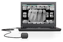 Digital x ray images to improve diagnosises and present a treatment plan to the patients.