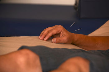 Acupuncture clinic Newport Oregon Central Coast Community Acupuncture