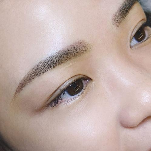 brow recovery.jpeg
