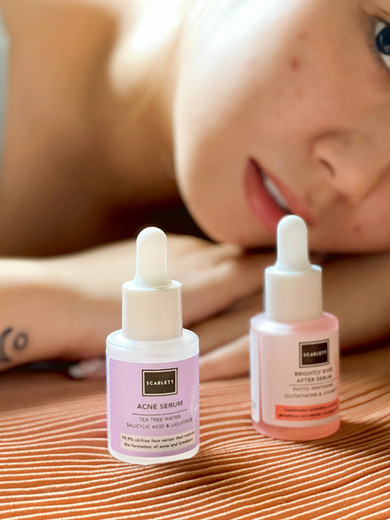 BRIGHTLY EVER AFTER & ACNE SERUM BY SCARLETT WHITENING REVIEW
