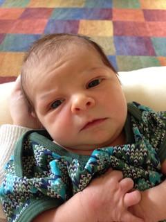 baby with Congenital Muscular Torticollis