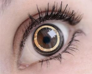 Smart contact lenses: Is there a role for ocular wearables?