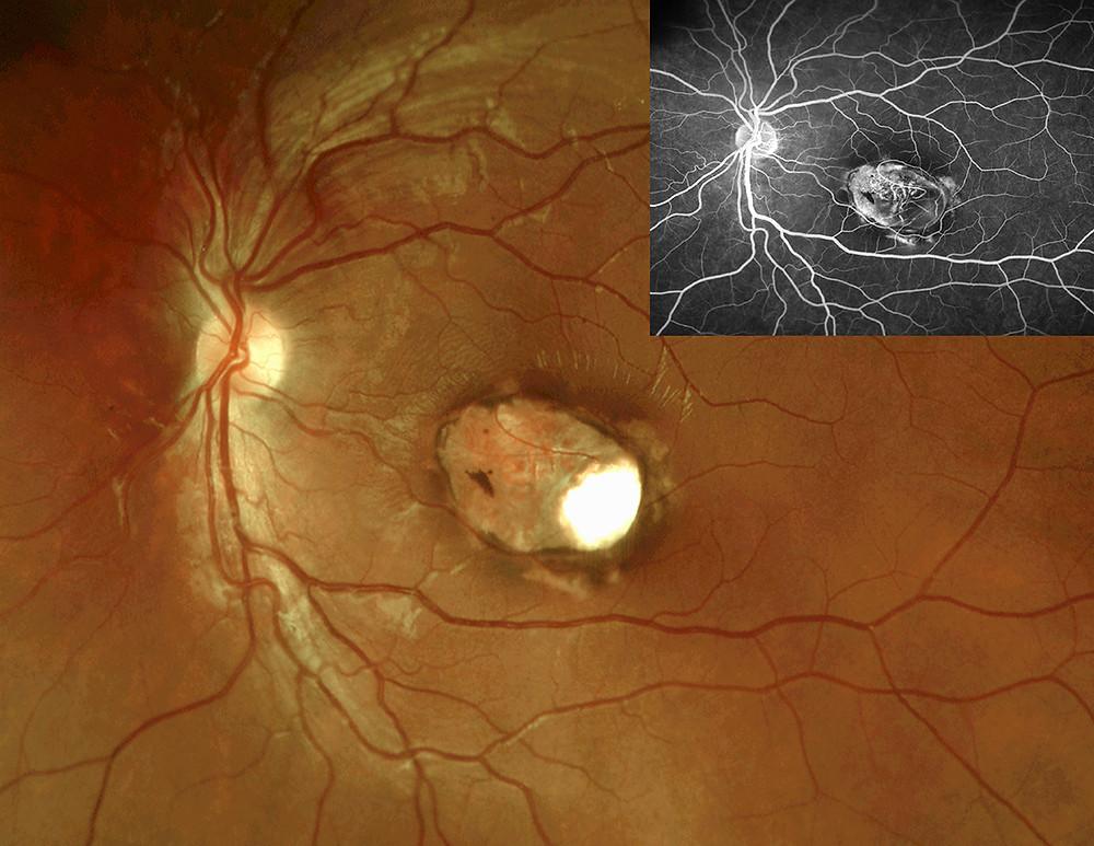 ocular toxoplasmosis