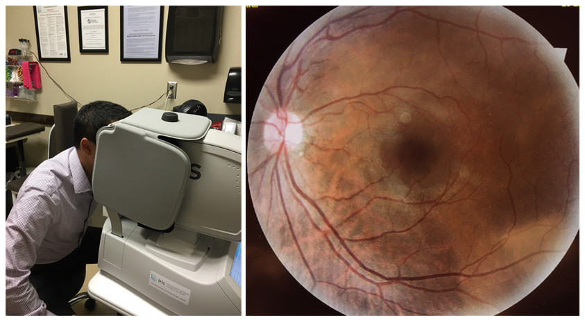 Remote retinal imaging system placed in a primary care physician's office to screen for diabetic retinopathy