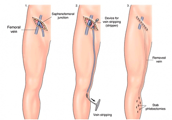 Stripping-schema.png