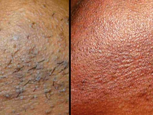 Épilation définitive au laser yag sur peau noire