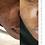 Thumbnail: Gamme complète  pour peau grasse + imperfections pigmentaire