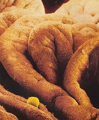 Outer part of Fallopian Tube - egg await