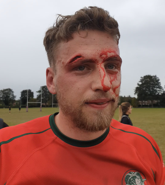 Harlow Rugby Club head injury