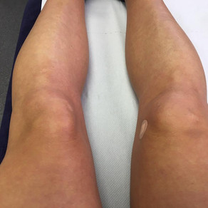 The reality of an injury and not making it to the start line - Sophie Vowden