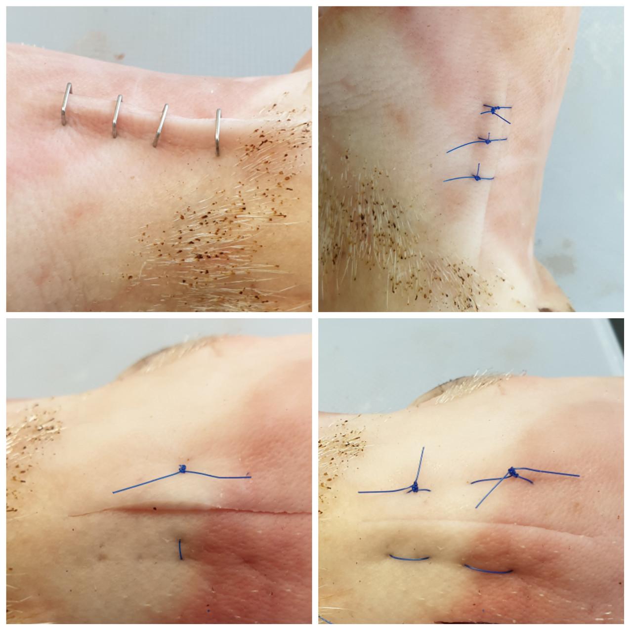 suturing skills