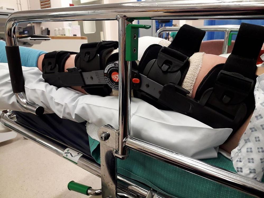 Nicole Gipp's leg operation