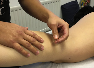 Acupuncture at SV Sports Therapy