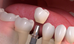 RISE IN DENTAL IMPLANT MARKET