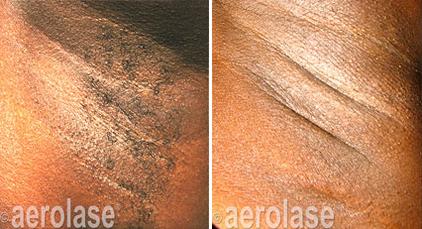 Hair Removal2 - Pair.png