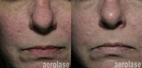 aerolase-NeoSkin Rosacea and Veins - Aft