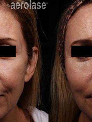 NeoSkin Rejuvenation - After 2 Treatment