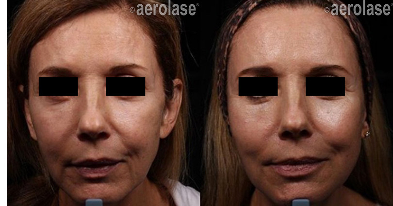 NeoSkin Rejuvenation - After 2 Treatment