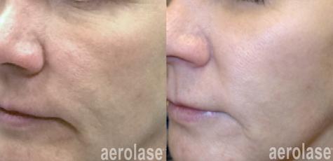 aerolase-skin-rejuvenation-before-after-