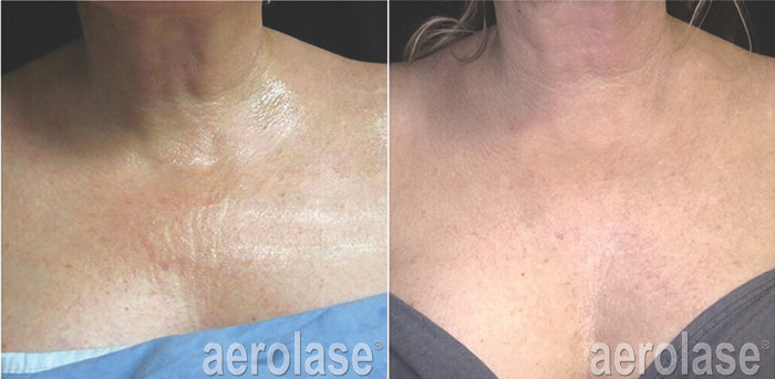 NeoSkin Rejuvenation - After 4 Treatment