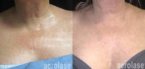 aerolase-neoskin-skin-rejuvenation-after