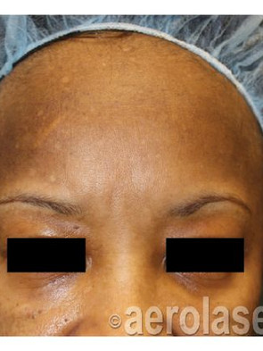 NeoSkin Melasma - After 1 Treatment comb