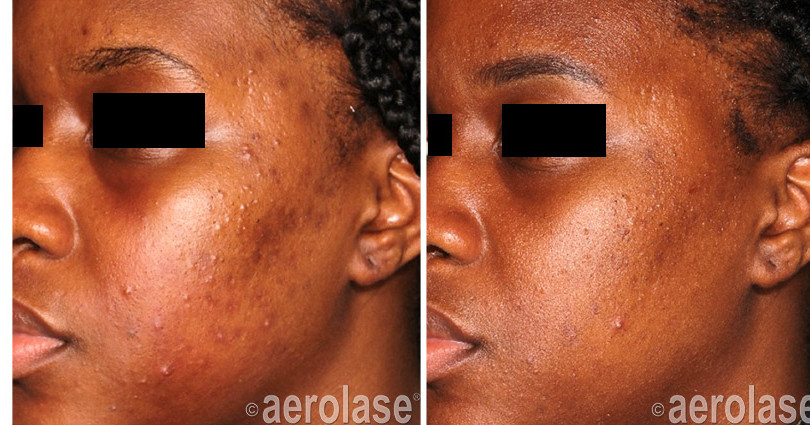 neoclear-acne-after-4-treatments-michell