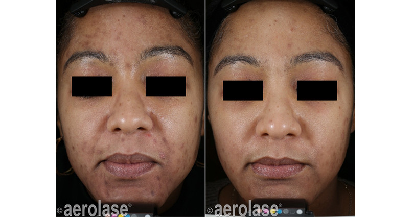 neoclear-acne-5-months-after-3-treatment