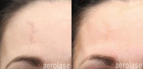 aerolase-neoskin-melasma-after-1-treatme