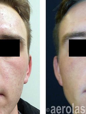 NeoSkin Rejuvenation - After 3 Treatment