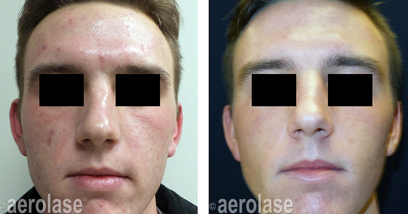 NeoSkin Rejuvenation - After 3 Treatment