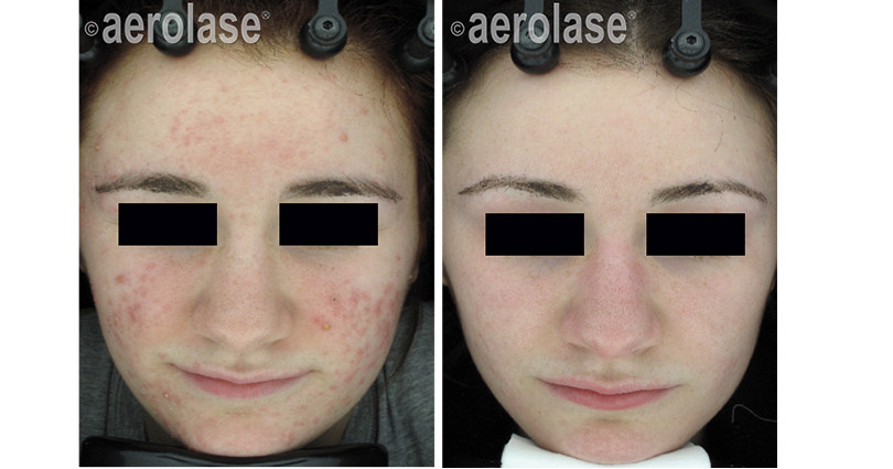 neoclear-acne-3-months-after-5-treatment