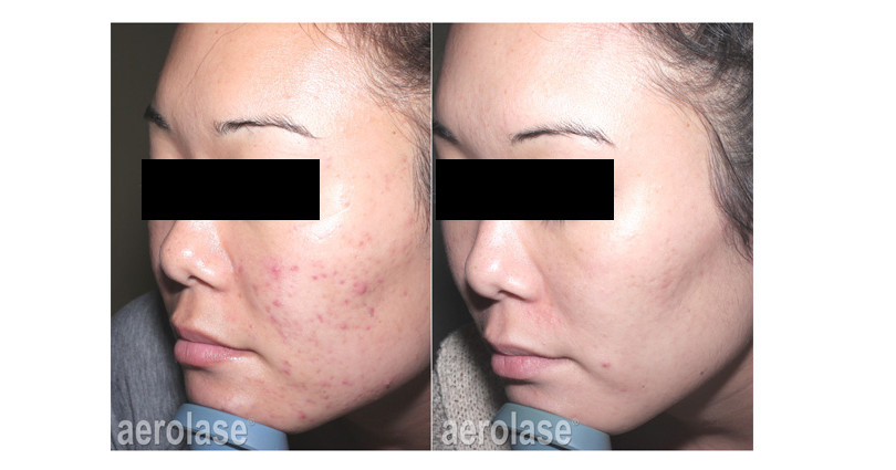 neoclear-acne-after-6-treatments-spade-s