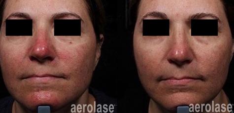 aerolase-neoskin-rosacea-1-week-after-1-