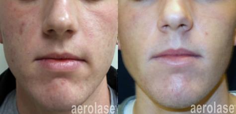 aerolase-kevin-pinski-acne-skin-rejuvena