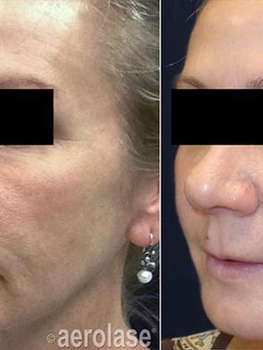 NeoSkin Rejuvenation - After 4 Treatment