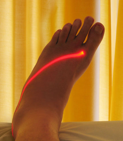 foot-laser-therapy-1440405-1279x1460.jpg