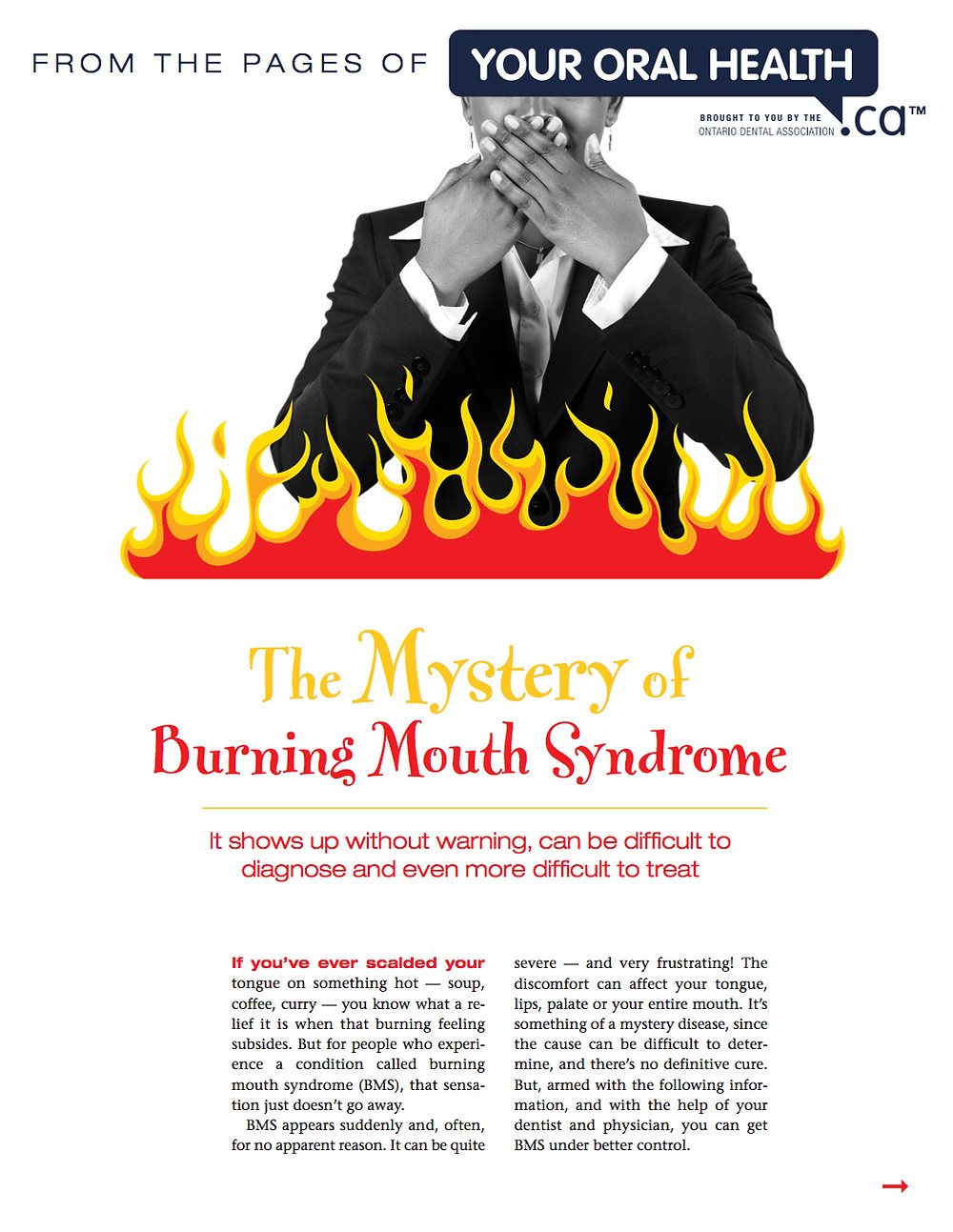 Peterborough Periodontists, Dentist,  Burning Mouth Syndrome,