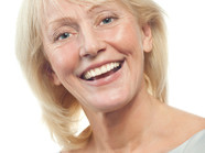 Sinus Lift for Successful Implants